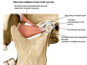 Воспаление височно-нижнечелюстного сустава