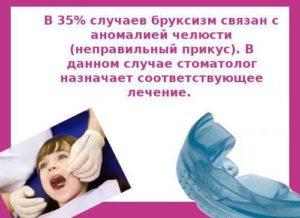 Причины скрежетания зубами